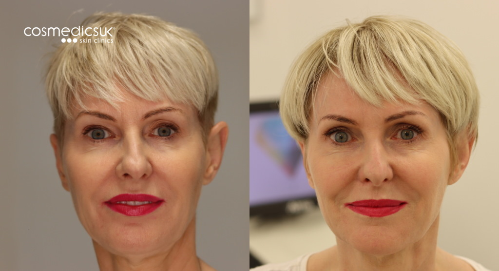 Upper blepharoplasty eyelid before and after results