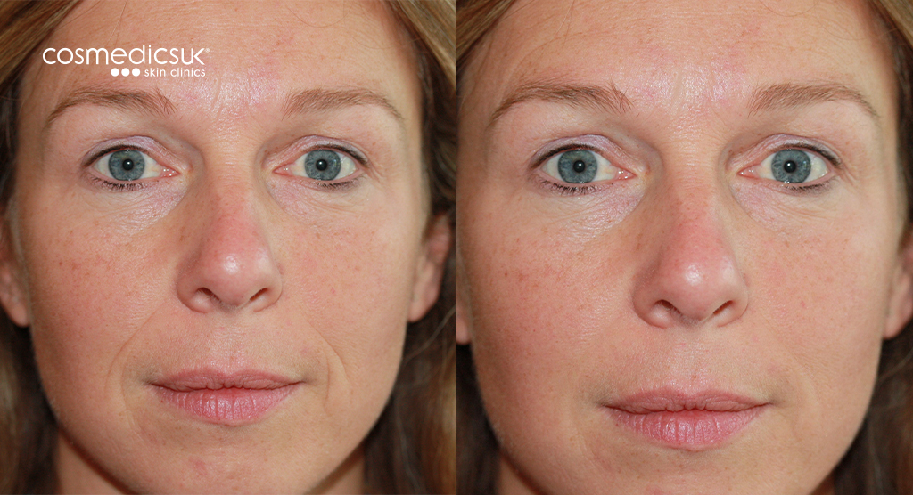 Restylane treatment before and after