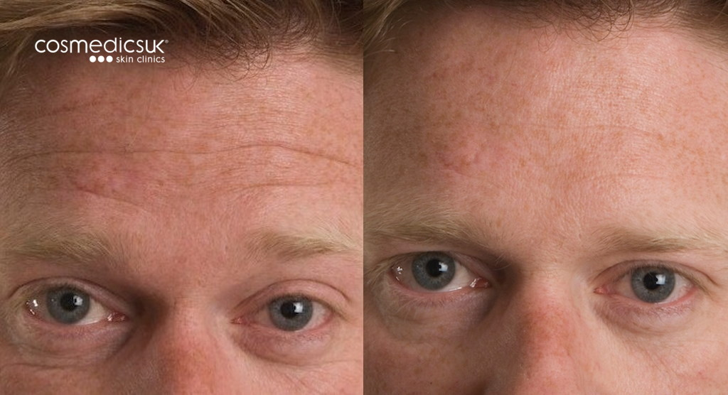 Forehead wrinkle treatment for men before and after