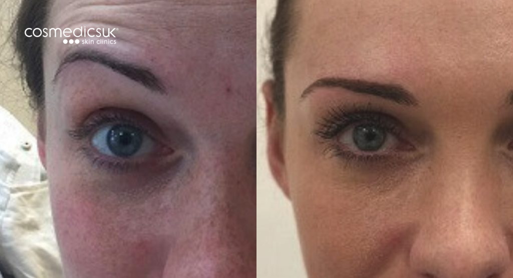 Forehead wrinkle treatment results