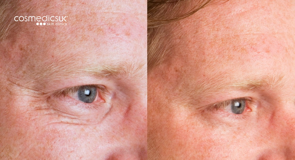 Mens crows feet before and after