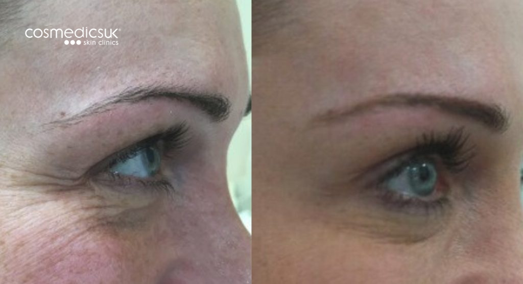 Womens crows feet before and after treatment