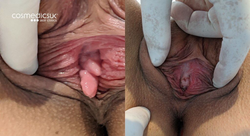 Before and after vaginal skin tag removal