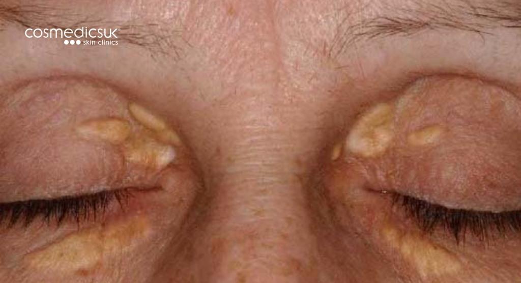 xanthelasma prior to surgery