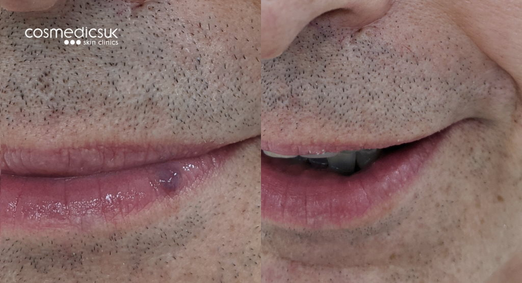 venous lake before and after results