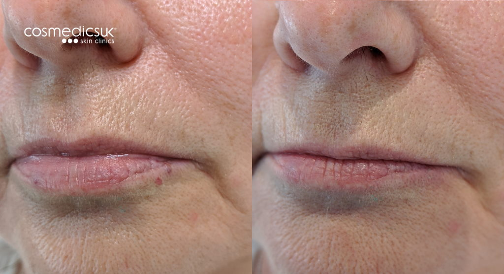 before and after venous lake laser treatment